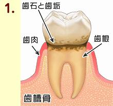 歯周病11