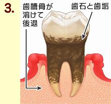 歯周病13