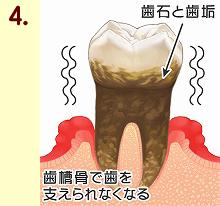歯周病14