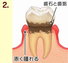 歯周病12