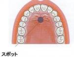 舌のスポット